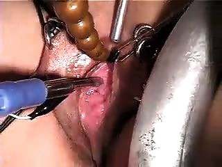 Urethra Sounding With E-stim