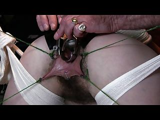 Hairy Bondage 3 The Speculum