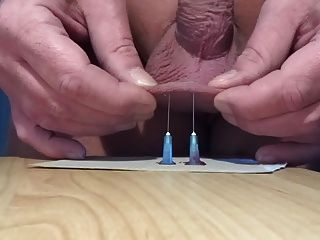 Cbt With Needle 02